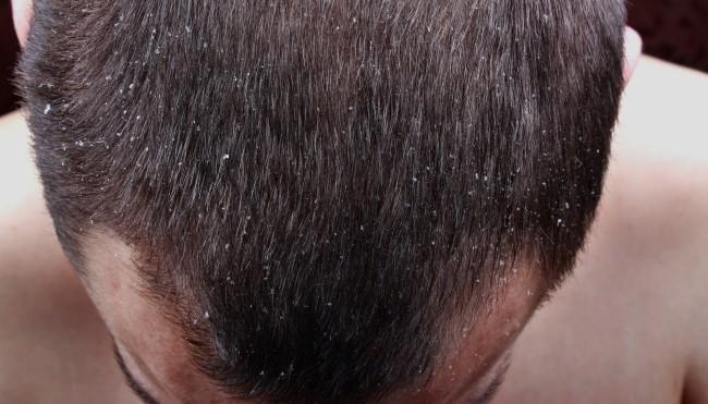 Die Wiederherstellung des Haares nach der Färbung der Maske