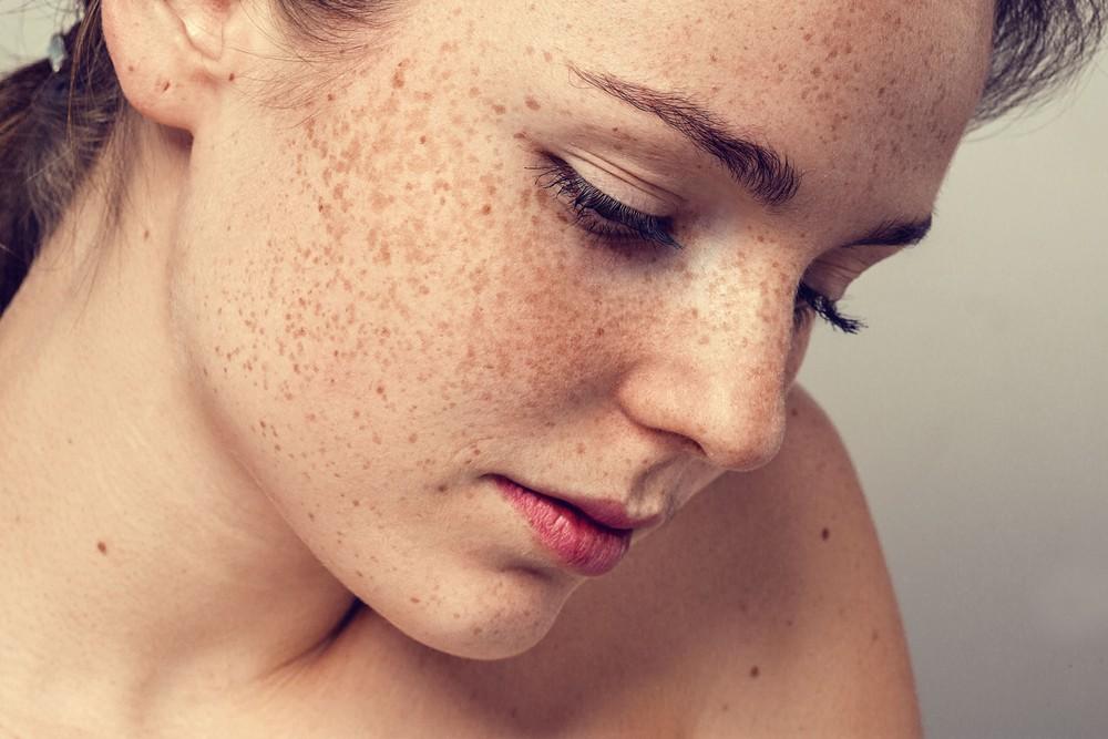 Der flüssige Stickstoff die Abtragung der Pigmentflecke auf der Person