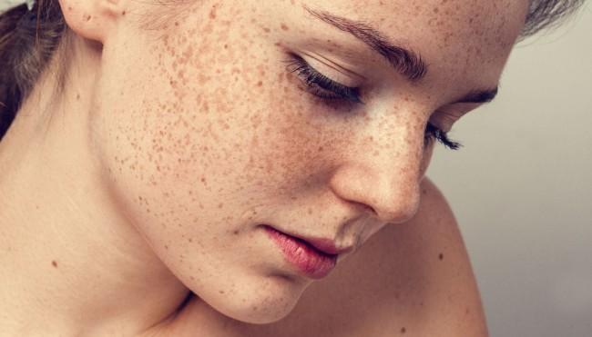 Die gute Sonnenschutzcreme von der Pigmentation auf der Person